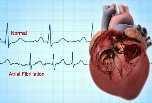 Biomarkers to aid diagnosis of irregular heart beat identified