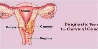 Cervical Cancer in India: A preventable tragedy that requires urgent attention