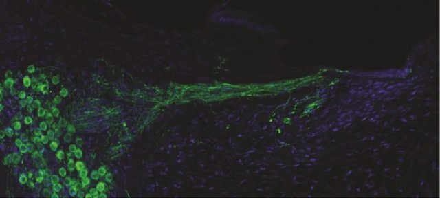 In a first, scientists regrow auditory nerves in lab