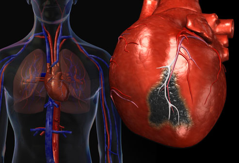 Pharmacist-led interventions may prevent heart disease  (13:18)