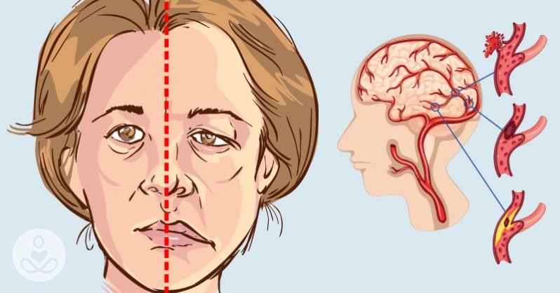 Novel device can quickly detect strokes