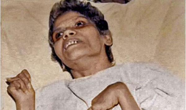 Even in her coma, Aruna triggered changes in euthanasia law