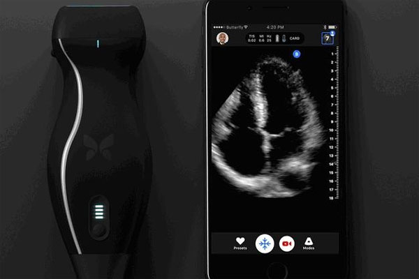 This iPhone-based ultrasound machine can detect cancer
