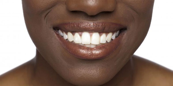 New smart material to help fight tooth decay